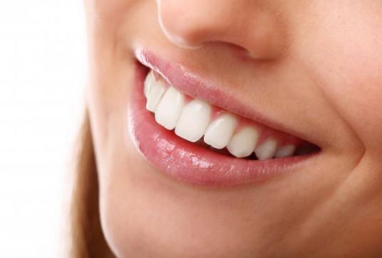 מתי עושים הלבנת שיניים