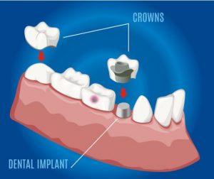 גילאים מתאימים להשתלת שיניים
