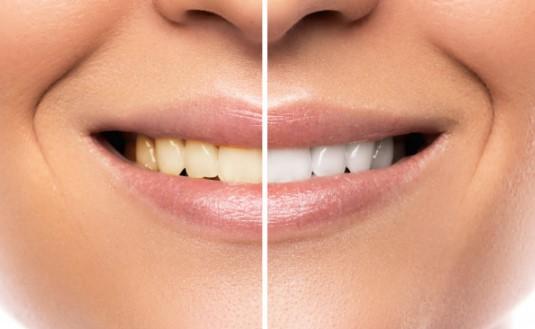 ציפוי שיניים לפני טיפול ואחרי
