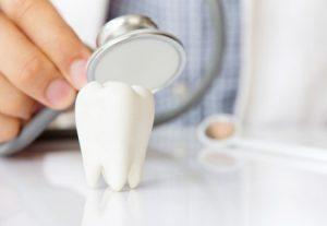 סוגי צפויי שיניים