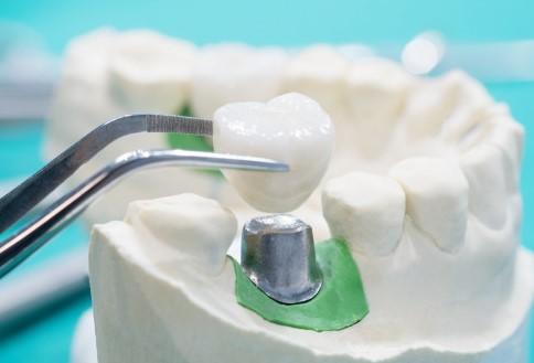 שתל להשתלה של שן