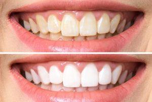 הלבנת שיניים בשיטת זום