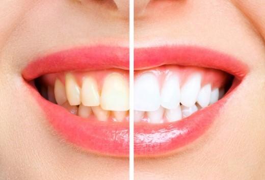 דוגמא להבלנת שיניים בשיטת זום