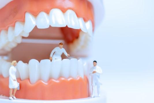 מחיר הלבנת שיניים