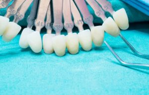 מזה ציפוי שיניים